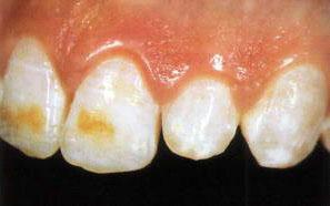 Тетрациклиновые зубы - фото