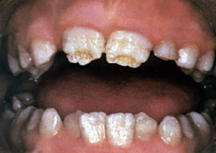 Зубы Фурнье у детей