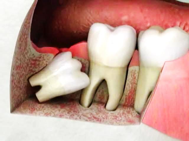 Давление на соседний зуб
