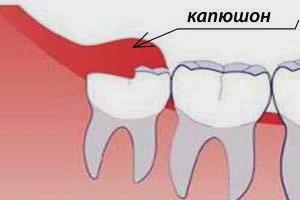 Осложнения, возникающие во время прорезывания зубов мудрости